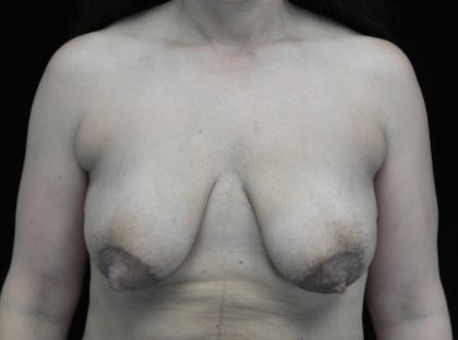 Breast Lift with Implants Before & After Patient #18385