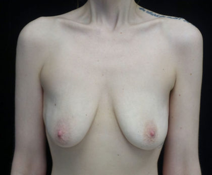 Breast Lift with Implants Before & After Patient #18350