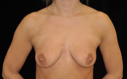 Breast Lift with Implants Before & After Patient #18357