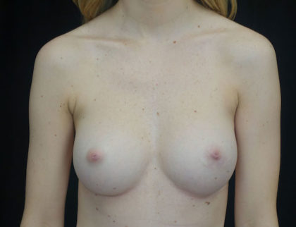 Breast Augmentation (Implants) Before & After Patient #18320