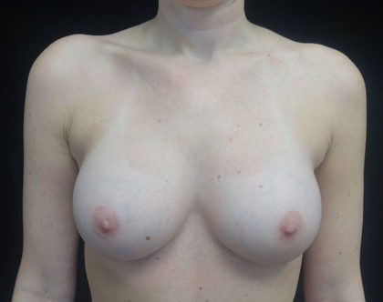 Breast Revision Before & After Patient #18364