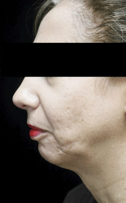 Chin Implants Before & After Patient #18408