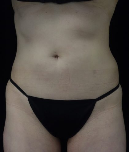 CoolSculpting Before & After Patient #18332