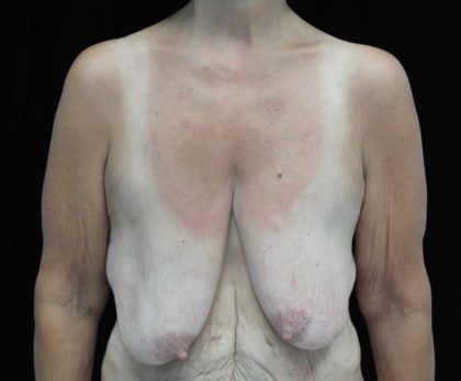 Breast Lift Before & After Patient #18473