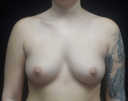 Breast Augmentation (Fat Transfer) Before & After Patient #18455
