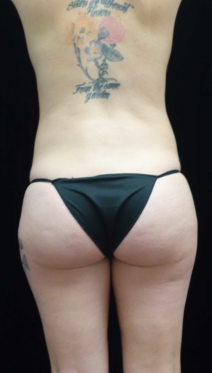 Liposuction Before & After Patient #18465