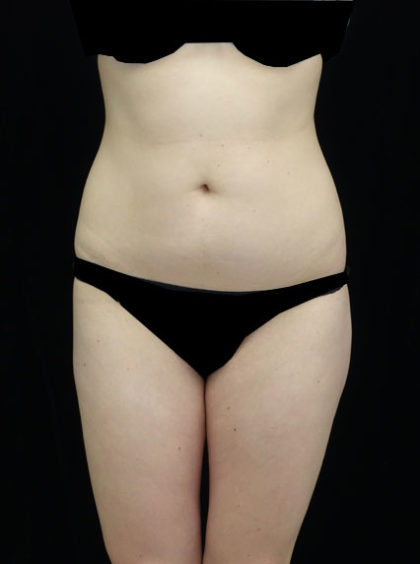 Liposuction Before & After Patient #18502
