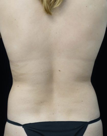 CoolSculpting Before & After Patient #18509
