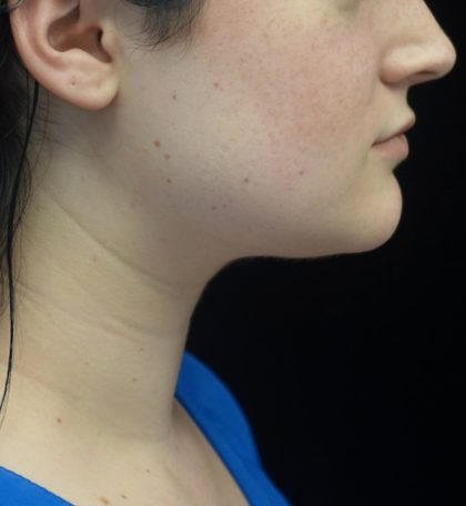 Kybella Before & After Patient #18512