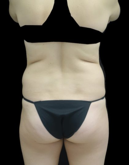 Liposuction Before & After Patient #18524