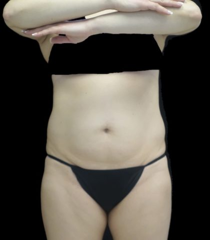 Lipoabdominoplasty Before & After Patient #18527