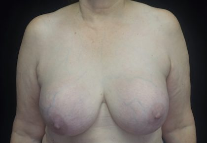 Breast Lift Before & After Patient #18534
