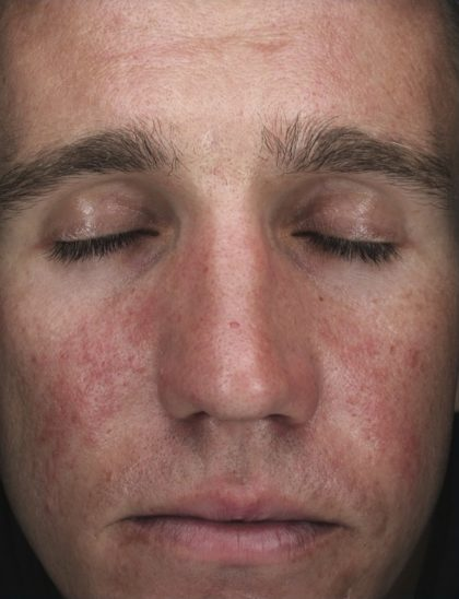 AlphaRet Peel Before & After Patient #18662