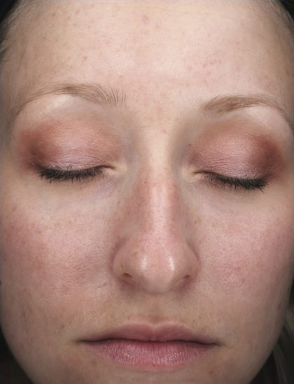 AlphaRet Peel Before & After Patient #18665
