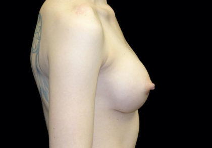 Breast Augmentation (Implants) Before & After Patient #18674