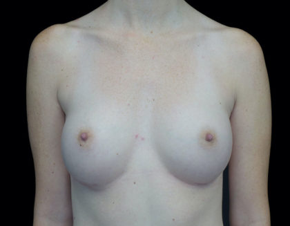 Breast Augmentation (Implants) Before & After Patient #18681