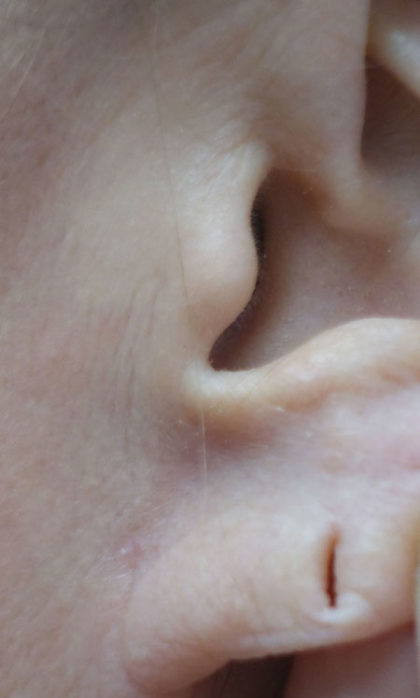 Earlobe Repair Before & After Patient #18743