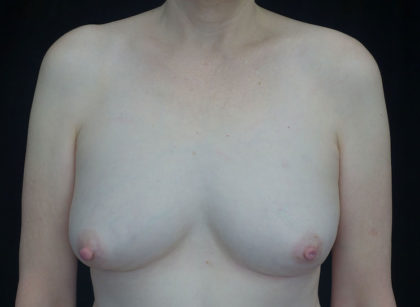 Breast Augmentation (Fat Transfer) Before & After Patient #18730
