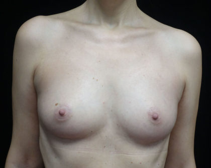 Breast Augmentation (Fat Transfer) Before & After Patient #18748