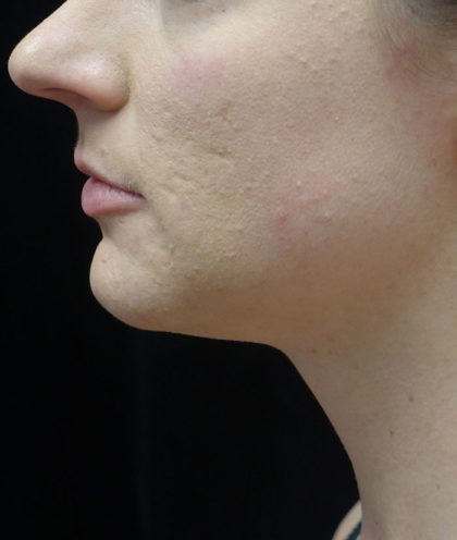 Kybella Before & After Patient #18738