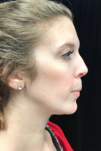 Chin Implants Before & After Patient #18819