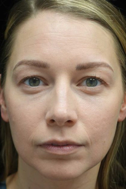 Blepharoplasty Before & After Patient #18805