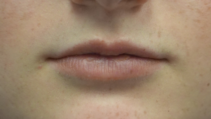 Lip Augmentation - Fillers Before & After Patient #18961