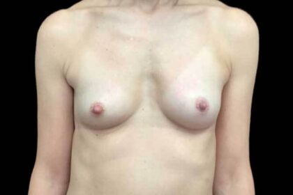 Breast Augmentation (Fat Transfer) Before & After Patient #19104