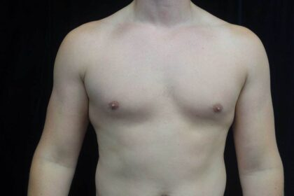 Gynecomastia Before & After Patient #19044