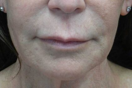 Lip Lift Before & After Patient #19134
