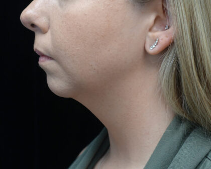 Chin Implants Before & After Patient #19234