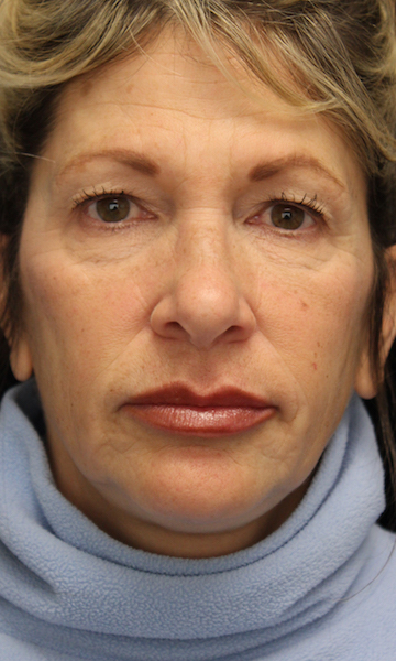 Lip Augmentation - Fillers Before & After Patient #19299
