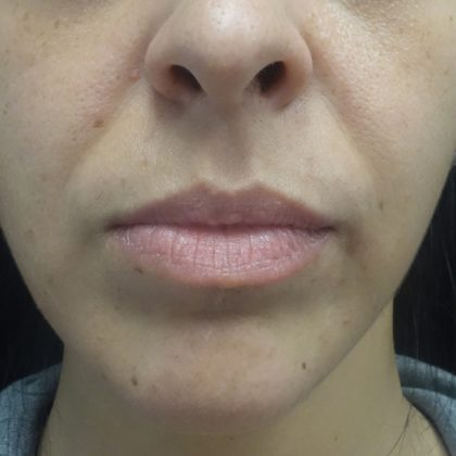 Lip Augmentation - Fillers Before & After Patient #19317