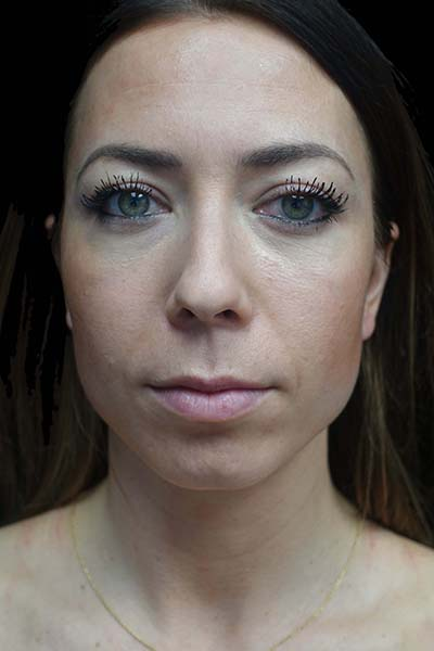 Blepharoplasty Before & After Patient #19354