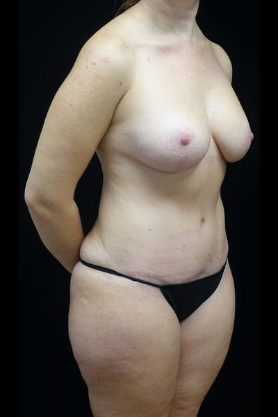Breast Lift with Implants Before & After Patient #19374