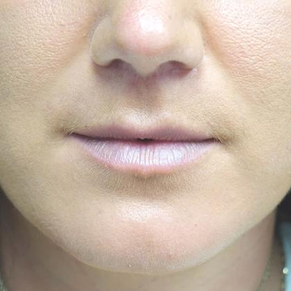 Lip Lift Before & After Patient #19390