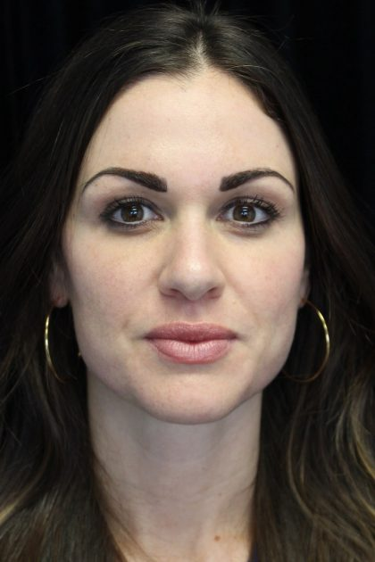 Lip Augmentation - Fillers Before & After Patient #19442