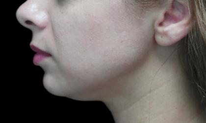 Lip Augmentation Before & After Patient #19469