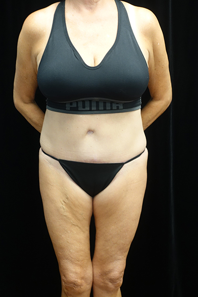 Tummy Tuck Before & After Patient #19541
